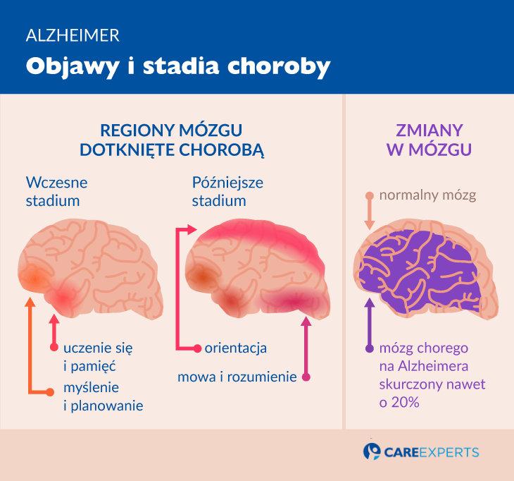 alzheimer objawy istadia choroby