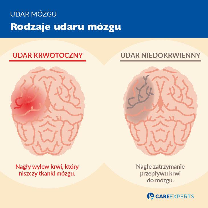 udar mózgu objawy - rodzaje udaru mozgu