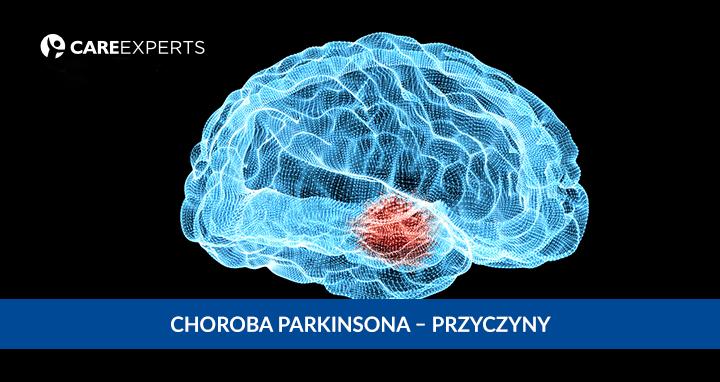 Choroba Parkinsona przyczyny
