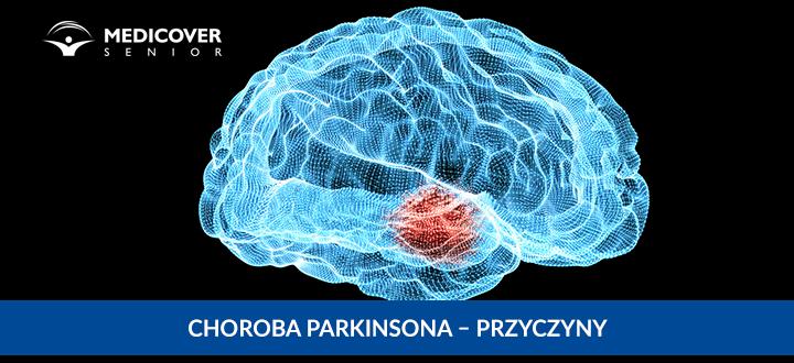 Choroba Parkinsona - przyczyny
