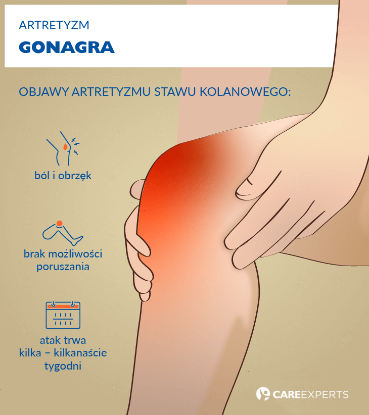 artretyzm objawy - gonagra