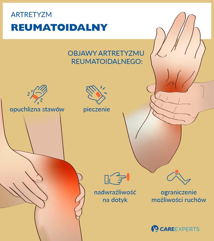 artretyzm objawy - reumatoidalny