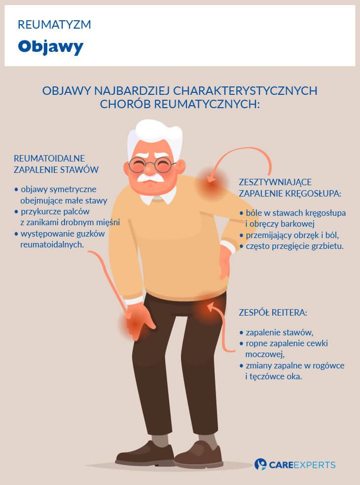 reumatym przyczyny - objawy