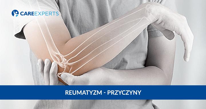reumatyzm przyczyny