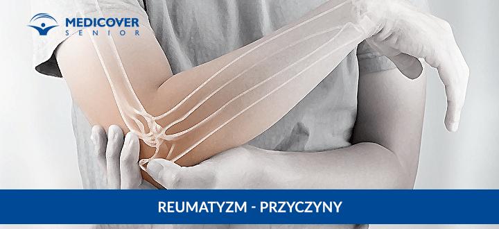 Reumatyzm - przyczyny