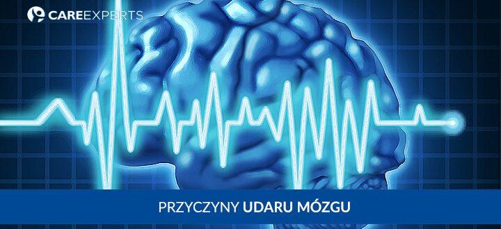 Udar mózgu – przyczyny