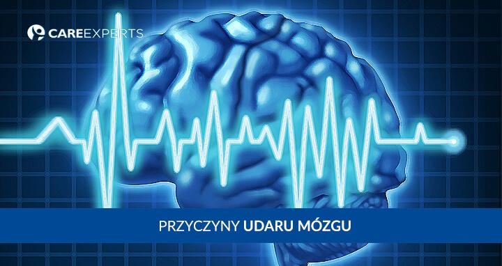 Przyczyny udaru mózgu